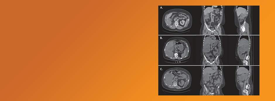 Kidney Cancer pre-press articles
